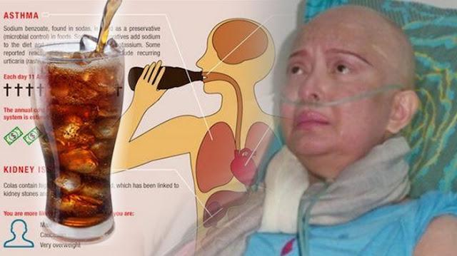 Sudah Diingatkan Ilmuan Amerika , Minuman Kesukaan Yana Zein Ini Ternyata Pembawa Kanker Payudara, Lihat Hasilnya!