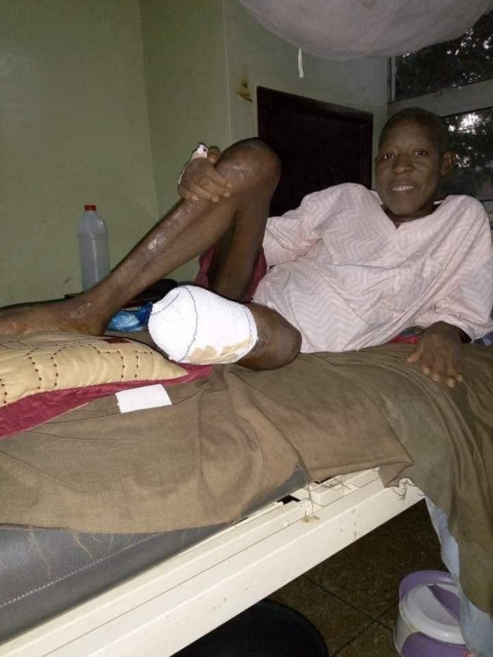 An yanke wa fitaccen jarumin fina-finan Hausa kafa daya
