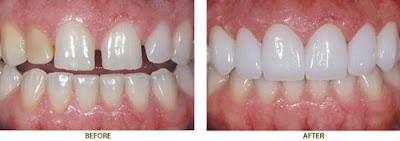 bọc răng sứ mất bao lâu để có răng mới