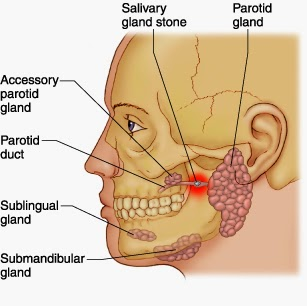 AskDentistMY 牙牙学医: What is Salivary Gland stone? What are the causes? How to treat?