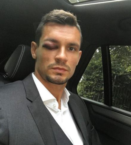 See the horrific eye injury that kept Liverpool defender Dejan Lovren out of Leicester clash (photos)