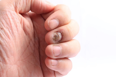 Tofacitinib and Ixekizumab the Most Effective Treatments for Nail Psoriasis, Study Finds