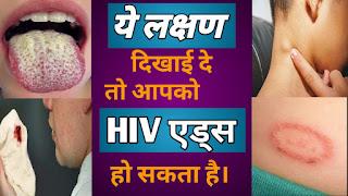 HIV aids symptoms in hindi