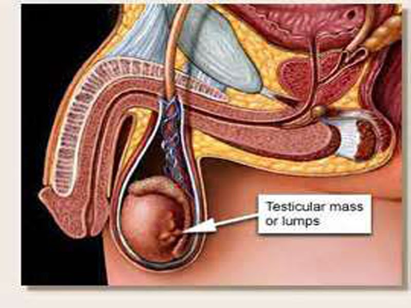 Information About Testicular Cancer - HEALTH