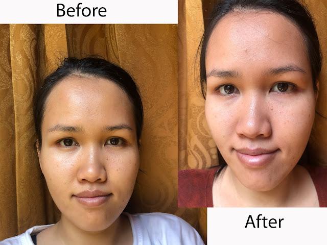 hasil-before-after-satu-bulan-pakek-serum-scarlett-whitening