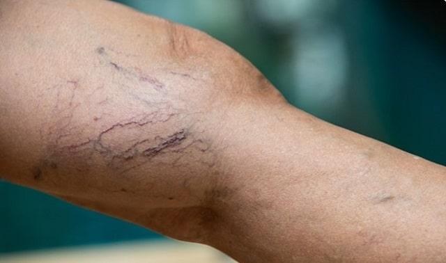 causes varicose veins spider veins treatment