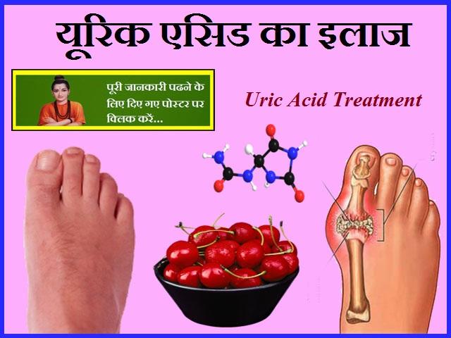 Uric Acid Treatment-यूरिक एसिड का इलाज