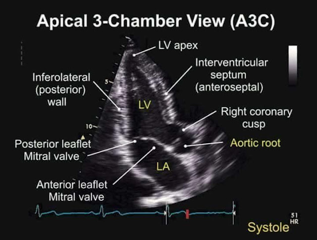 Apical three chamber view (A3C) - labelled