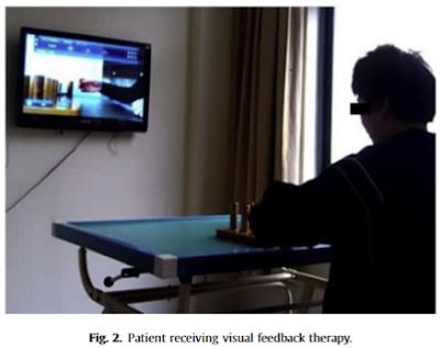 視覚フィードバック療法
