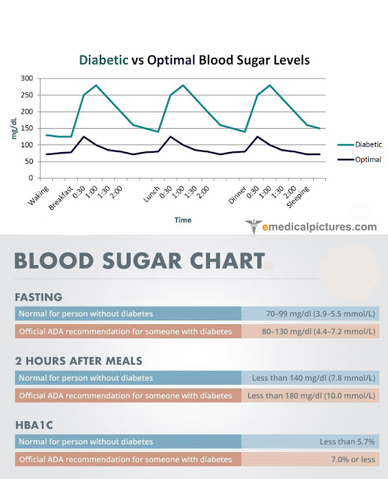 Normal blood sugar levels chart (and diabetes)