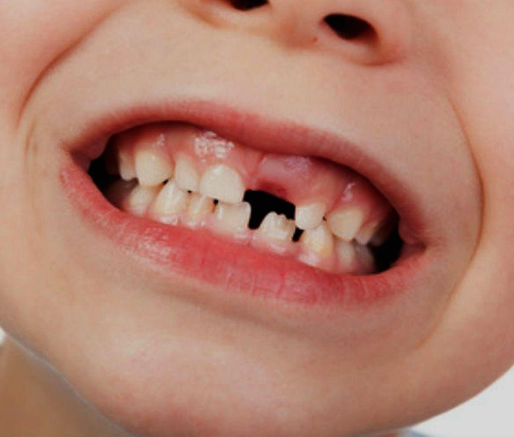 erupción-dental