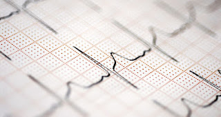 Idioventricular Rhythm Meaning, Rate, ECG, Causes, Treatment