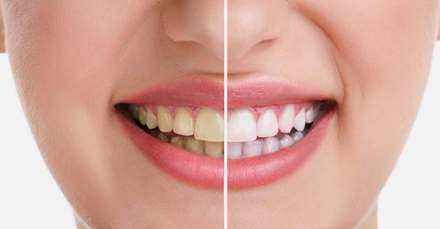 طريقة تبييض الاسنان بسرعة فى المنزل