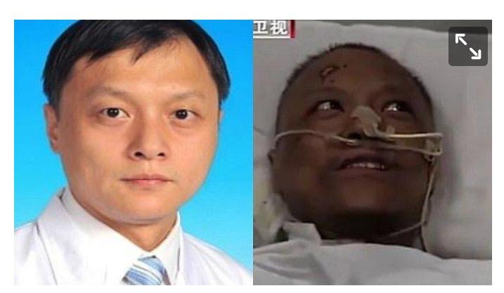 Wajah Pasien Corona di China Menghitam, Ini Penyebabnya