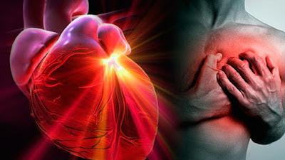 2. inteligencia artificial medicos infartos