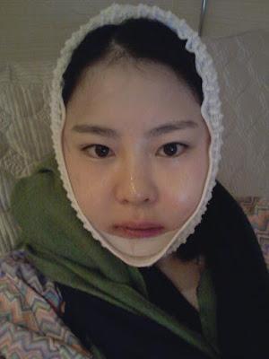 2 hari sesudah korea face contouring surgery di Wonjin Plastic Surgery