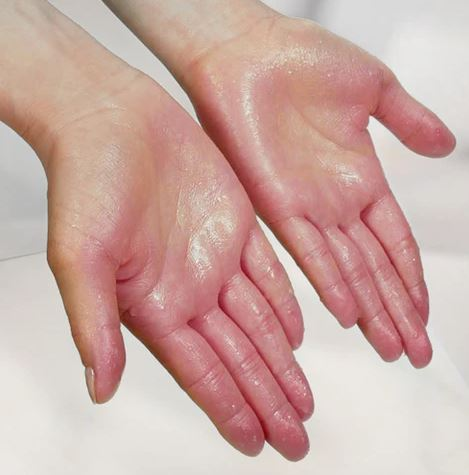 sweating in palms: हथेलियों में ज्यादा पसीना आने की समस्या से इन घरेलू नुस्खों से छुटकारा