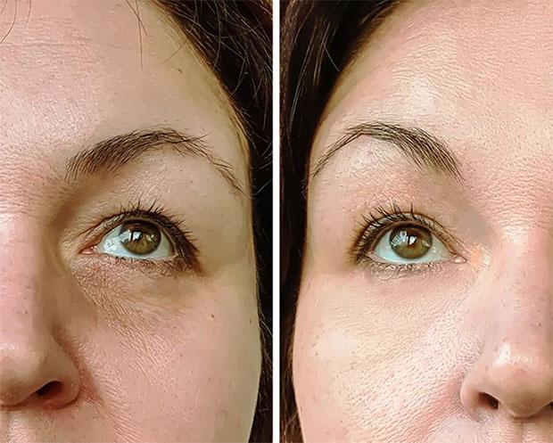 Olive Oil  - Improve Skin