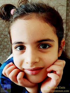Why Performing Septoplasty Operation in Children is Inappropriate?