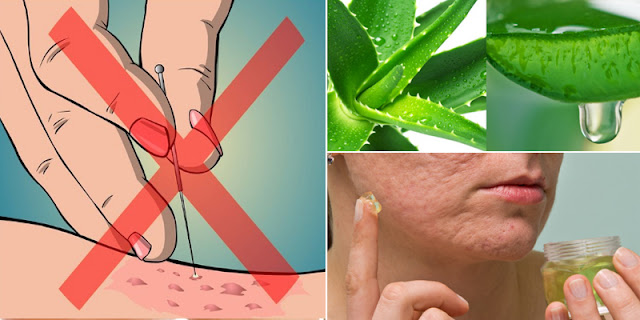 Rub This Ingredient On Your Affected Area And Remove Stretch Marks Very Fast!