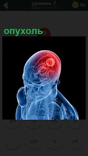 275 слов опухоль в голове человека отмечена красным цветом 7 уровень