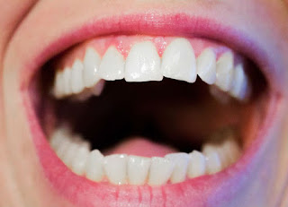 about oral cancer,mouth cancer,cavity cancer,symptoms of oral cancer,is oral cancer is dangerous