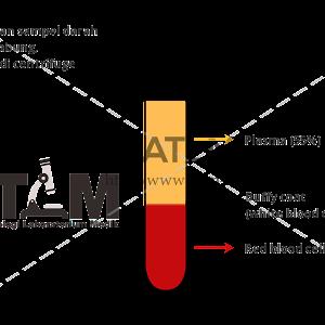 leukocyták a prosztatitis kenetben)