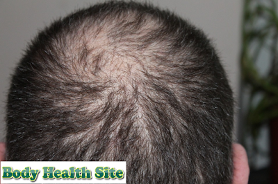 Alopecia Areata Definition, Symptoms, Causes, Diagnosis, Treatment, Prevention, Complications