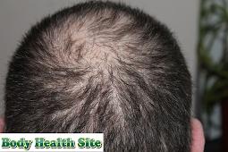 Alopecia Areata, Definition, Symptoms, Causes, Diagnosis, Treatment, Prevention, Complications