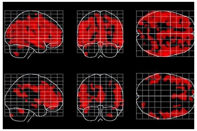 otak saat bermeditadi dan tidak bermeditasi