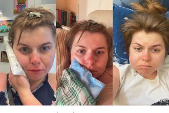 Wyrwanie dwóch ósemek na jednej wizycie - opuchnięta twarz, okłady z kapusty i kilka dni w łóżku, czyli jak ja to przeżyłam