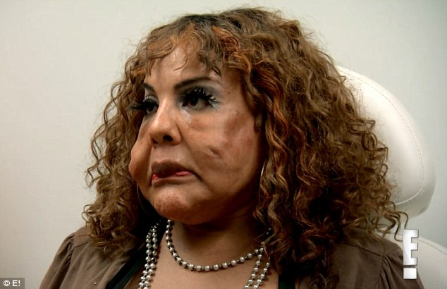 worst plastic surgery pictures