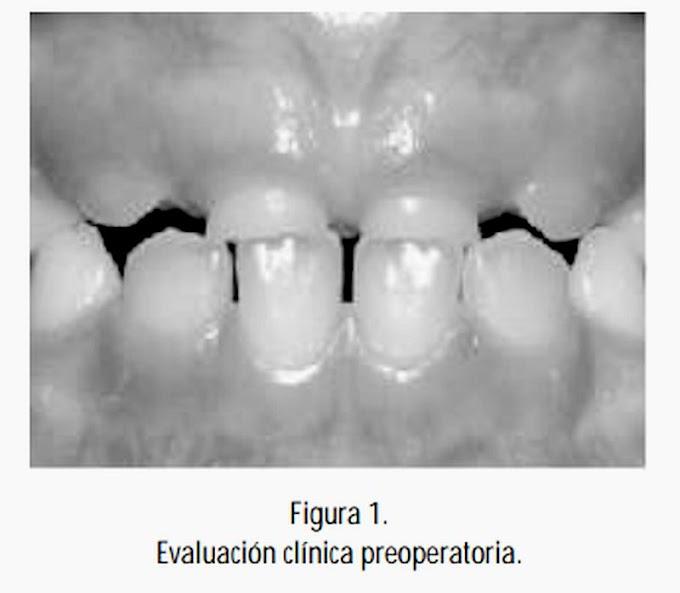 PDF: MESIODENTS - Tratamiento quirúrgico en Odontopediatría