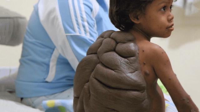 История мальчика-черепахи: удалось ли помочь ребенку с огромной родинкой на спине