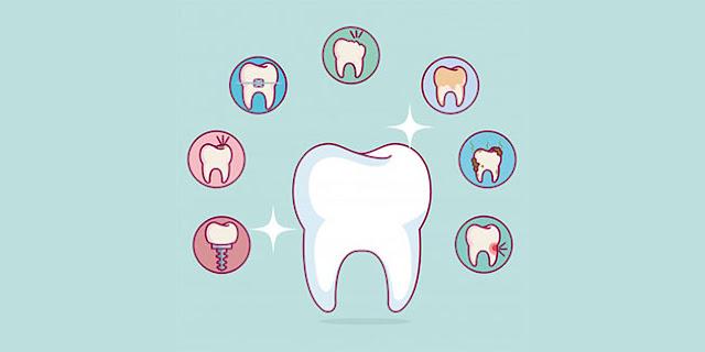 18 Cara Bikin Gigi Putih Seketika