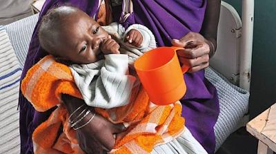 Dezenas de bebés mortos na Indonésia de subnutrição e sarampo