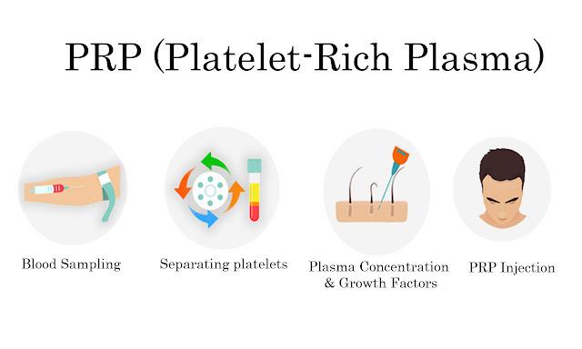 PRP | platelet-rich plasma