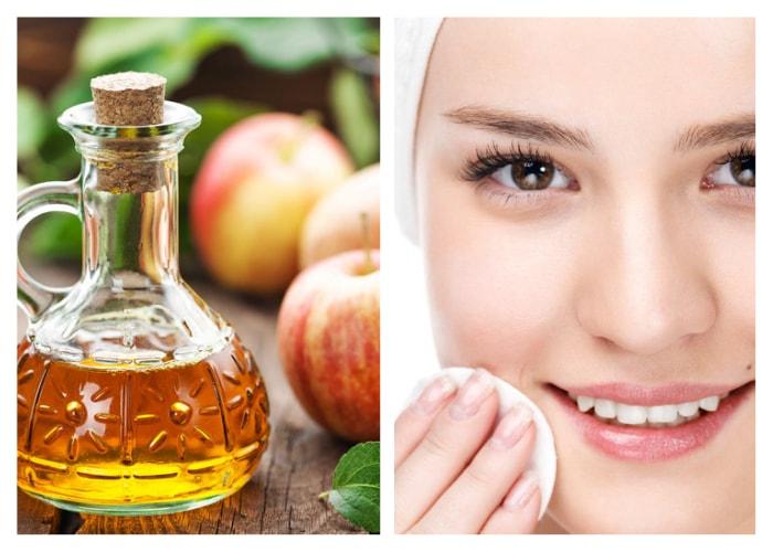 Conheça 31 benefícios do vinagre no cuidado da pele e da saúde