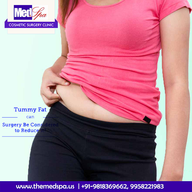 Tummy Tuck Surgery - And the Various Types of the Same!