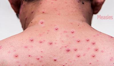 Measles,হাম
