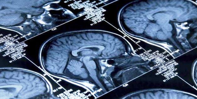 Epileptic seizures in India