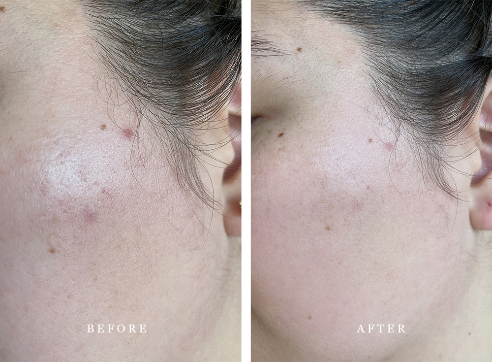 Banish-skincare-Banisher-2.0-hyperpigmentation-before-after-review