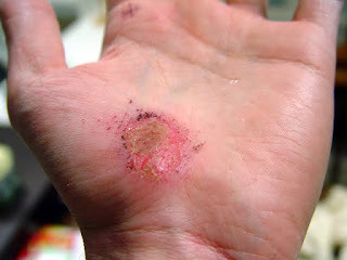 The Best Ways To Treat Abrasion