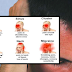 Know How To Recognize What Types Of Headaches Are Dangerous and Serious
