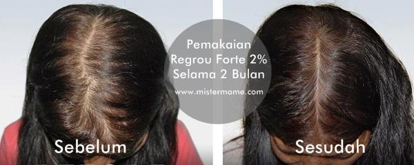 Hasil pemakaian Regrou Forte 2% selama 2 Bulan