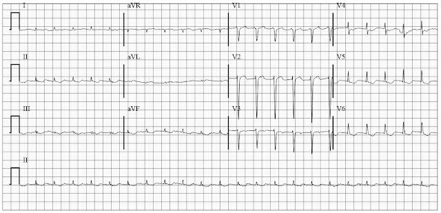 ECG of atrial flutter
