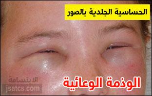 حساسية الجلد وانواعها بالصور