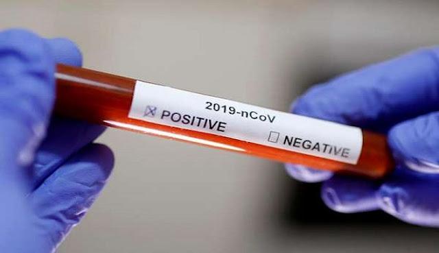 Pasien Positif Covid-19 di Kebumen Bertambah 2 Orang, Berikut Updatenya