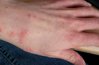 Macam-macam Penyakit Kulit Dan Gambarnya  Pada Anak Dan Dewasa
