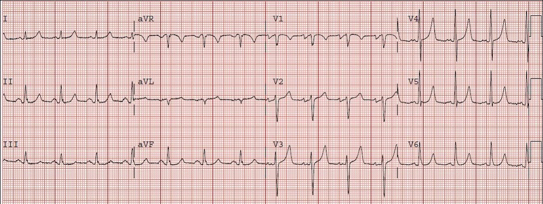 Dr  Smith's ECG Blog: Are these peaked T-waves the patient's